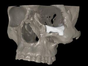 16 CT MRI Alterno